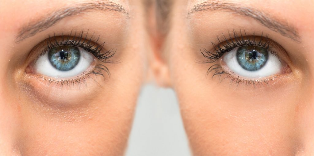 Dermal Fillers for Treatment of Under Eye Circles